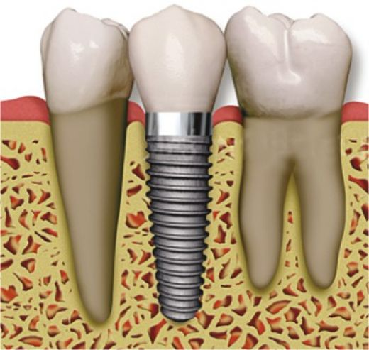 What To Expect When You Have A Dental Implant Procedure