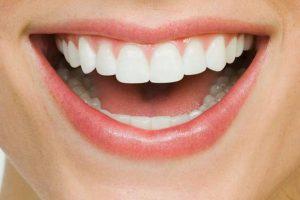 Tips To Keep Your Teeth White And Healthy