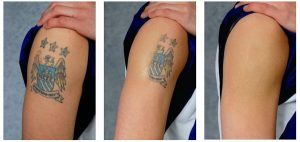 Think Before You Ink: An Overview On Laser Tattoo Removal
