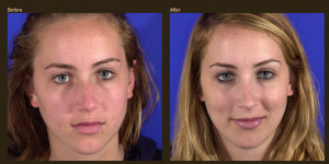 Add Luster To Your Beauty With Rhinoplasty Surgery