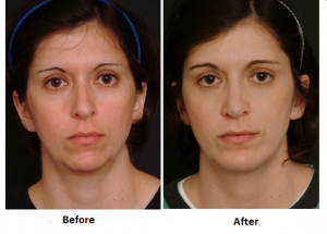 Can Your Nose Grow After Rhinoplasty?