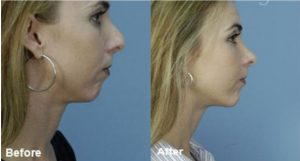 Get The Rhinoplasty Done To Find A New Yourself