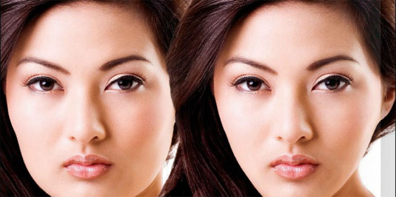 5 Irresistible Benefits Of Jaw Reduction