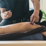 Finding The Best Acupuncturist For You