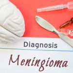 The Procedure Of Meningioma