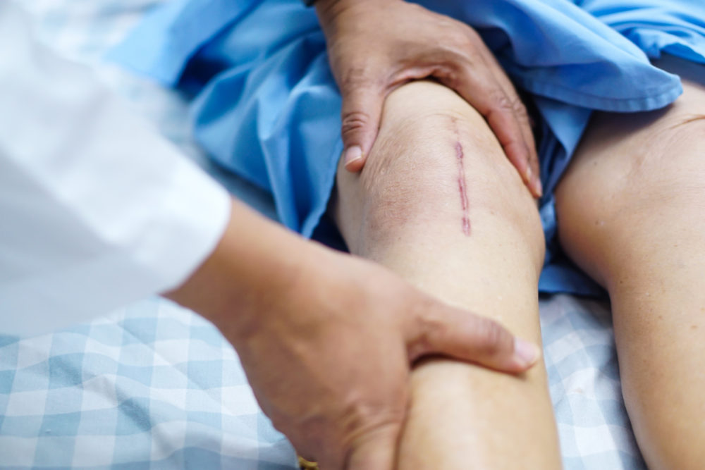 Resuming Life After Knee Replacement Surgery